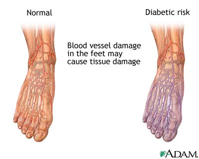 Neuropathy can be caused by high blood sugars.