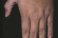 Picture of acanthosis nigricans on the hand