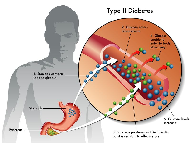 Type II Diabetes Diagram