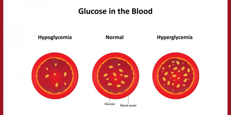 It is important to know the difference between high and low blood sugars so you can treat them properly